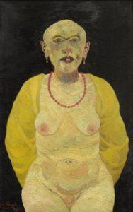 Josef Scharl, Misshandelte Dirne, 1931, © Josef Scharl Foto: Sammlung Hartwig Garnerus